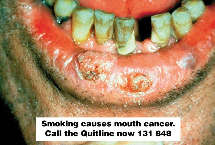 11 4 State And Territory Legislation Tobacco In Australia